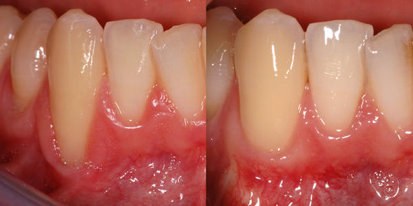 Sensitive Teeth and Receding Gums Line