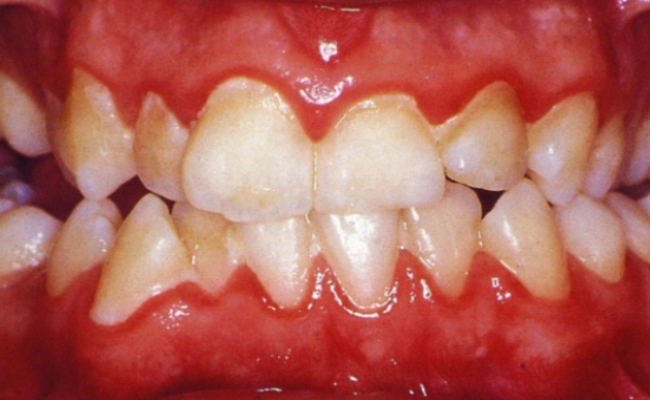 Receding Gums Brushing and Brushing Habits